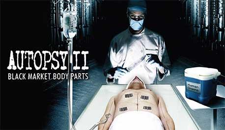 autopsy-ii-black-market-body-parts\widescreen.jpg